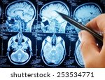magnetic resonance image  mri ... | Shutterstock . vector #253534771