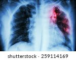 pulmonary tuberculosis .  chest ... | Shutterstock . vector #259114169