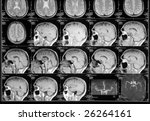 black and white head magnetic... | Shutterstock . vector #26264161