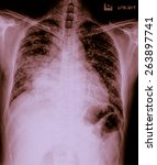 Small photo of film chest x-ray show alveolar infiltrate at lung due to Mycobacterium tuberculosis infection (Pulmonary Tuberculosis)