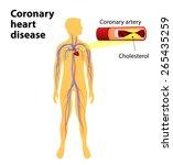 coronary heart disease is a... | Shutterstock .eps vector #265435259