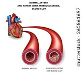 normal artery and unhealthy...   Shutterstock .eps vector #265861697