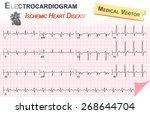 electrocardiogram   ecg   ekg   ... | Shutterstock .eps vector #268644704