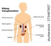 kidney transplantation or renal ... | Shutterstock .eps vector #273487007