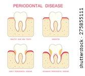 tooth periodontal disease ... | Shutterstock .eps vector #275855111