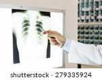 A Doctor Checking X Ray Photo...