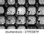 head magnetic resonance image | Shutterstock . vector #27953879