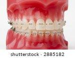braces model   Shutterstock . vector #2885182