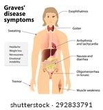 Graves\' Disease Or Toxic...