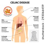coeliac disease or celiac... | Shutterstock .eps vector #293066459
