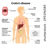 crohn's disease or crohn... | Shutterstock .eps vector #295196585