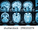closeup of a ct scan with brain | Shutterstock . vector #298101074