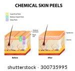 chemical peeling or procedure... | Shutterstock . vector #300735995