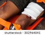 patient with broken leg  | Shutterstock . vector #302964041