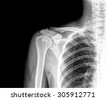 X Ray Of Human Shoulder
