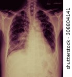 Small photo of Chronic bronchitis, emphysema old pulmonary tuberculosis