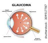 human eye. disease glaucoma.... | Shutterstock .eps vector #309517787