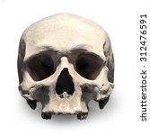 Human Skull On White Backgroun...