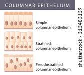 medical illustration of the...