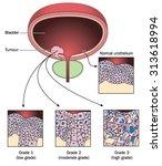 tumour of the bladder wall ... | Shutterstock .eps vector #313618994