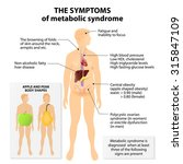 Metabolic Syndrome. Signs And...