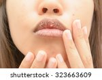 dry mouth women | Shutterstock . vector #323663609