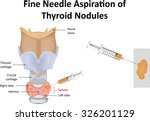fine needle aspiration of... | Shutterstock .eps vector #326201129