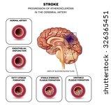 stroke in the cerebral artery ... | Shutterstock .eps vector #326365451