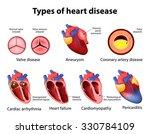 heart disease  valve disease ... | Shutterstock .eps vector #330784109