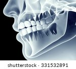X Ray Image Of A Jaw With Teeth.