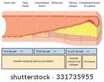 development of an atheromatous... | Shutterstock .eps vector #331735955