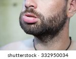 Male With Swollen Lip Due To ...