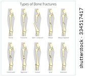 types of bone fractures medical ...   Shutterstock .eps vector #334517417