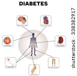 diabetes complications detailed ... | Shutterstock .eps vector #338382917