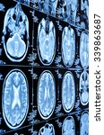 closeup of a ct scan with brain | Shutterstock . vector #339863687