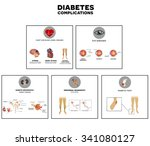 diabetes complications affected ... | Shutterstock .eps vector #341080127
