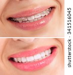 perfect teeth before and after... | Shutterstock . vector #341516045