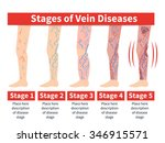 vector varicose infographic.... | Shutterstock .eps vector #346915571