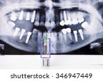 dental implant and tooth... | Shutterstock . vector #346947449