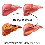 medical structure of the liver  ... | Shutterstock . vector #347197721