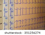 ecg diagram | Shutterstock . vector #351256274