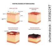 skin burn classification. first ... | Shutterstock .eps vector #353582297