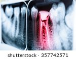 pain of tooth decay on teeth x... | Shutterstock . vector #357742571