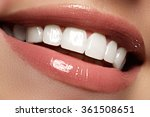 perfect smile before and after... | Shutterstock . vector #361508651