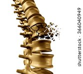spinal fracture and traumatic... | Shutterstock . vector #366040949