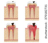 stages of tooth decay... | Shutterstock .eps vector #370182731