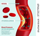 blood pressure infographic | Shutterstock .eps vector #373279969