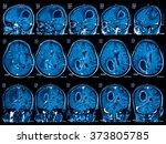 Small photo of Magnetic resonance imaging (MRI) of the brain, brain tumor, three views (sagittal, coronal and transverse)