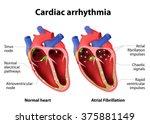 cardiac arrhythmia. cardiac...   Shutterstock . vector #375881149