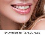 portraiture women's mouth ... | Shutterstock . vector #376207681